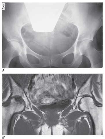 Superior sensitivity of MRI in the diagnosis of osteonecrosis of the femoral head. A 45-year-old woman receiving high-dose glucocorticoids developed right hip pain. Conventional x-rays (A) demonstrated only mild sclerosis of the right femoral head. T1-weighted MRI (B) demonstrated low-density signal in the right femoral head, diagnostic of osteonecrosis.