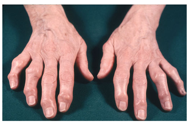 Severe osteoarthritis of the hands affecting the distal inter-phalangeal joints (Heberden's nodes) and the proximal inter-phalangeal joints (Bouchard's nodes). There is no clear bony enlargement of the other common site in the hands, the thumb base.