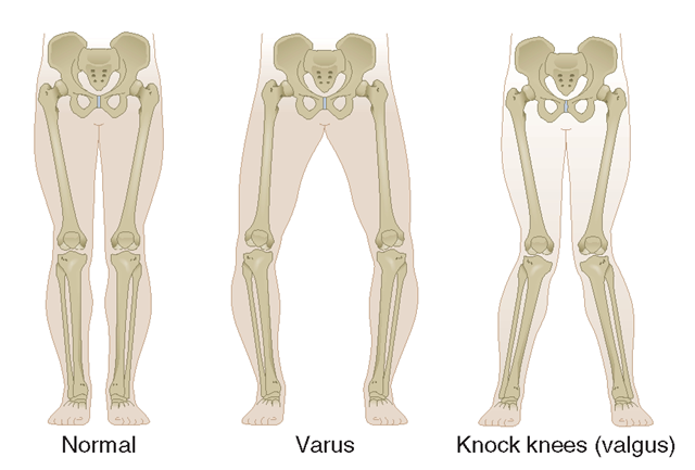 The two types of limb malalignment in the frontal plane: varus, in which the stress is placed across the medial compartment of the knee joint, and valgus, which places excess stress across the lateral compartment of the knee.