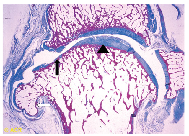 Pathologic changes of osteoarthritis in a toe joint. Note the nonuniform loss of cartilage (arrowhead vs solid arrow), the increased thickness of the subchondral bone envelope (solid arrow), and the osteophyte (open arrow).