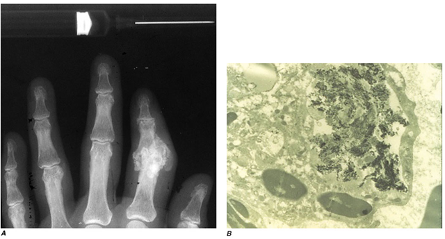 A. Radiograph showing calcification due to apatite crystals surrounding an eroded joint. B. An electron micrograph tissues. Nephrocalcinosis, renal failure, and death usually occur before age 20. Acute and/or chronic CaOx arthritis and periarthritis may complicate primary oxalosis during later years of illness.