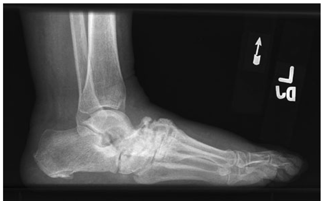 Charcot arthropathy associated with diabetes mellitus.Lateral foot radiograph demonstrating complete loss of the arch due to bony fragmentation and dislocation in the midfoot.