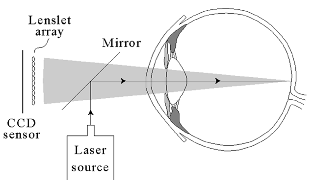 A side view of a Hartmann-Shack device. A laser projects a spot on the back of the cornea. This spot serves as a point light source, originating a wavefront out of the eye. This wavefront passes through a lattice of small lenslets which focus the wavefront onto a CCD sensor.