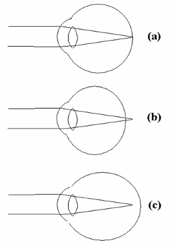 Loss of acuity in the human eye. (a) In the normal eye, images of objects at various distances from the viewer are focused onto the retina by the combined action of the cornea and the lens. (b) If the eyeball is effectively shorter than normal, or if the lens is unable to focus properly, nearby objects will not be properly focused, a condition known as farsightedness or hyperopia. (c) Similarly, if the eyeball is longer than normal or through an inability of the lens to focus on distant objects, the individual suffers from nearsightedness or myopia. (A general loss of visual acuity, independent of the distance to the object been seen, is called astigmatism, and commonly results from irregularities in the shape of the cornea.)