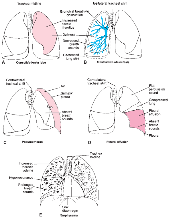 Lung size image collections human anatomy organs diagram respiratory disorders adult care nursing part 4 ccuart Images