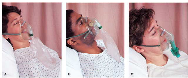 Types of oxygen masks. (A) Partial-rebreathing mask. (B)  sc 1 st  In Depth Tutorials & Oxygen Therapy and Respiratory Care (Adult Care Nursing) Part 2