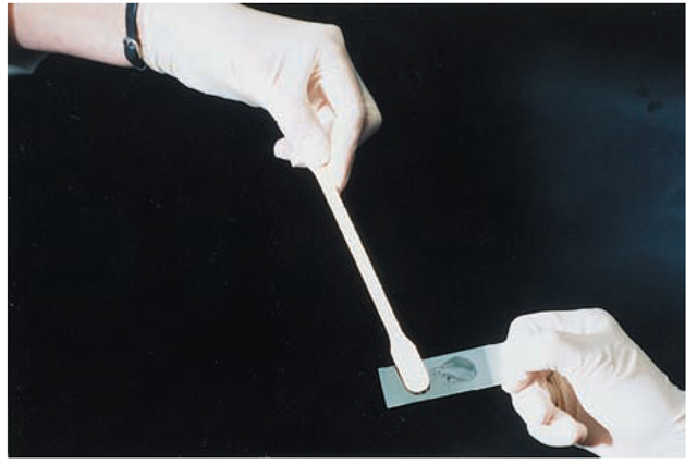 The nurse is assisting the practitioner during a pelvic examination. Notice that the nurse holds the microscope slide on the frosted portion so that the practitioner can smear the clear portion with vaginal secretions.