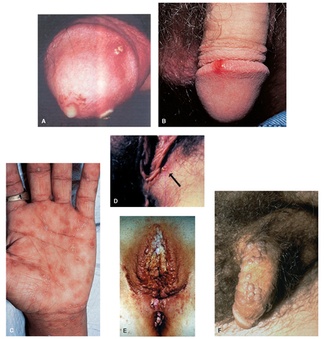 (A) Gonococcal urethritis is the most common symptom of gonorrhea seen in men. Note the purulent penile discharge from the meatus and the gonorrheal lesions on the foreskin (Porth, 2007). (B) The painless chancre of primary syphilis seen on a penis (Rubin, 2005). (C) The rash of secondary syphilis is often seen on the palms of the hands or the soles of the feet (Rubin, 2005). (D) Herpes simplex virus is seen as shiny, small blisters in the vulva area (Nettina, 2006). (E) Genital human papillomavirus, also known as condyloma acuminatum (pl. condyiomata acuminata), causes genital warts, as seen here in the vulva region (Nettina, 2006). (F) Genital human papillomavirus of the penis. Note the raised, round lesions on the shaft of the penis.