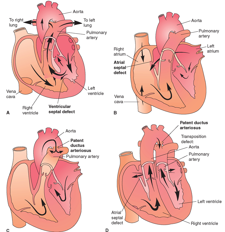 In aortic stenosis , an aortic valve malfunction causes the heart to ...