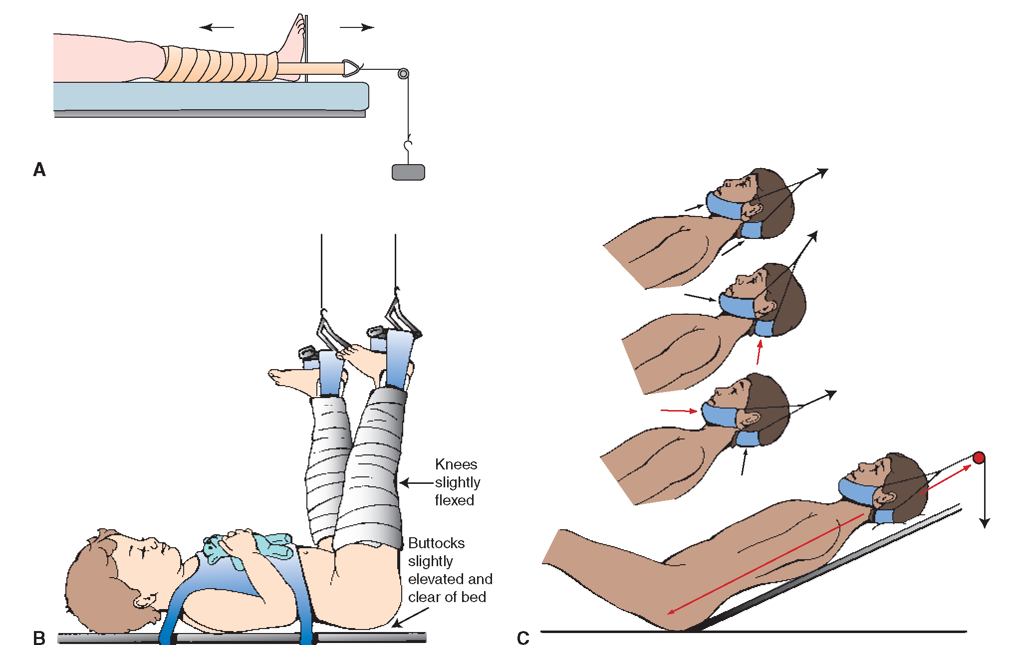 types of traction nursing