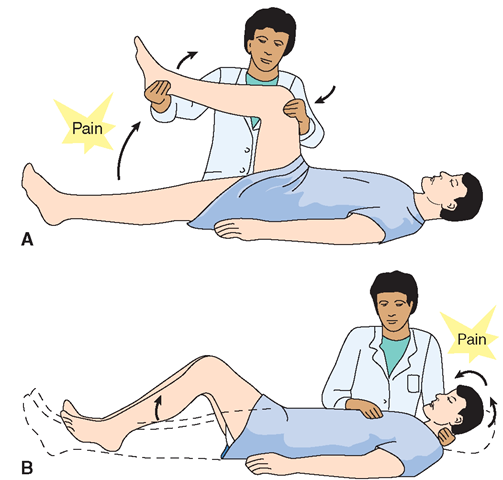 Meningitis nursing diagnosis