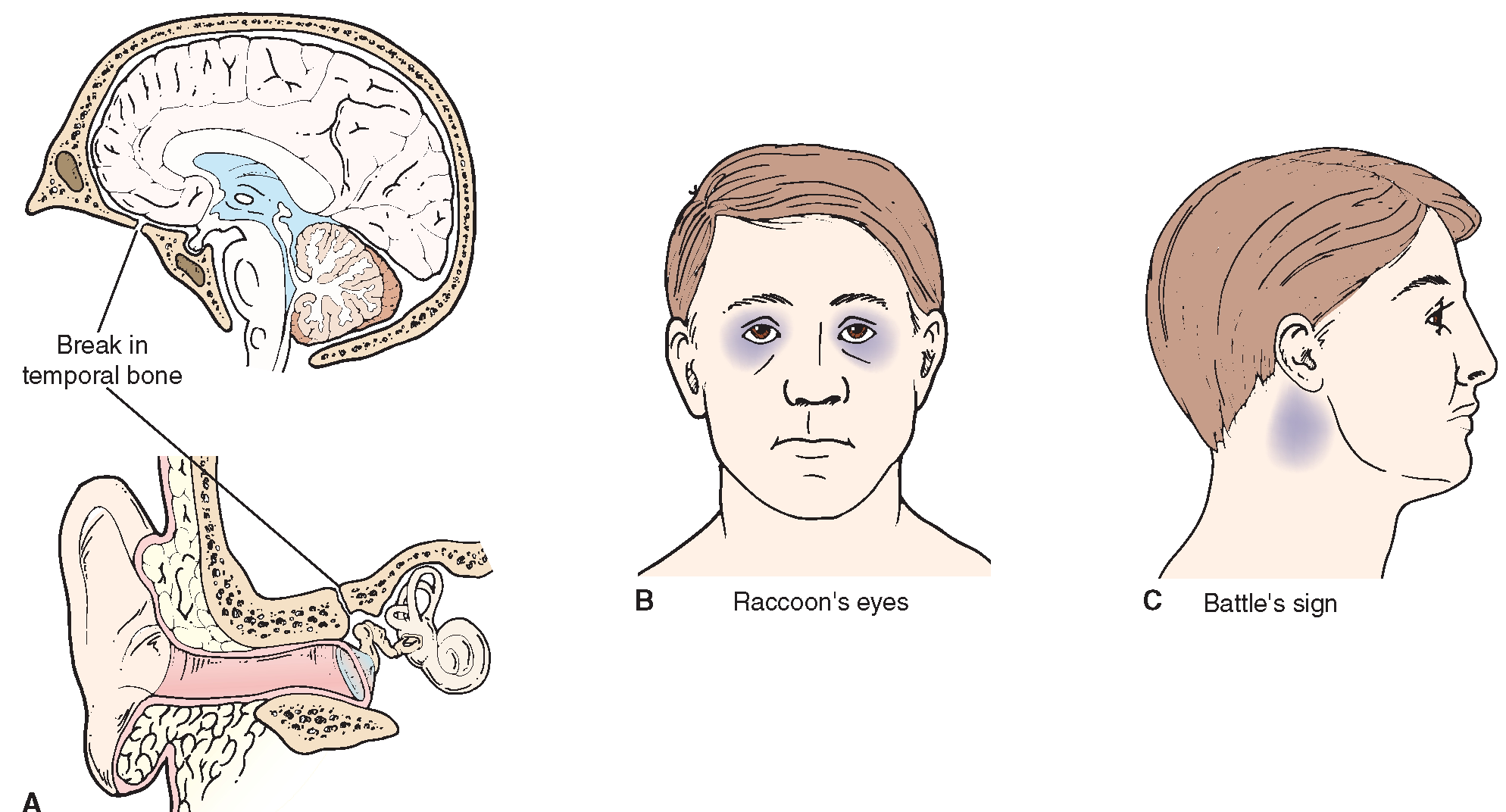 mastoiditis diagnosis