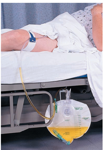 The Urinary Catheter Is Attached To A Drainage Bag Must Be Below