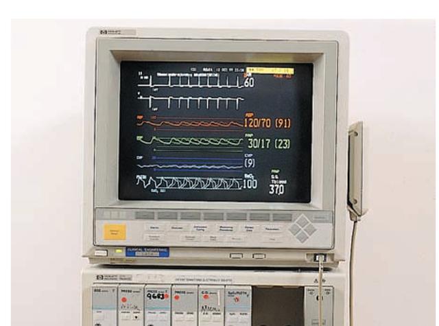 vital monitor machine
