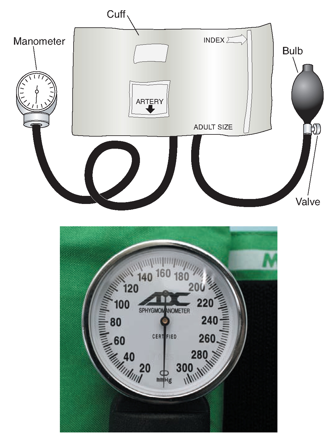 how to use bp apparatus aneroid