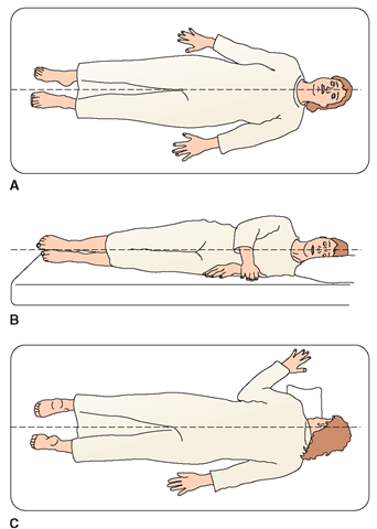 When a person is in proper alignment, an imaginary straight line can be drawn connecting the person's nose, breastbone (sternum), and pubic bone. Alignment in bed should be approximately the same as when standing. (A) Proper body alignment for a person lying on the back (supine). (B) Proper body alignment for a person lying on the side (lateral). (C) Proper body alignment for a person lying on the stomach in bed (prone). A small pillow or folded towel should be placed under the shoulder toward which the head is turned.
