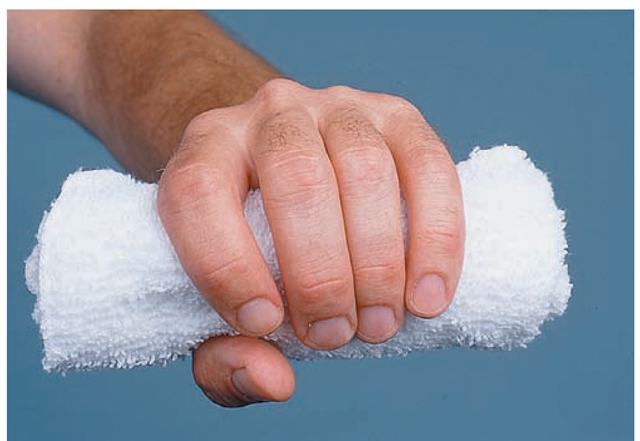 The hand roll (a rolled washcloth or commercially prepared hand roll) helps prevent contractures of the fingers.