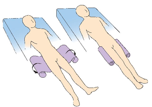 High Fowlers Position http://what-when-how.com/nursing/body-mechanics-and-positioning-client-care-nursing-part-2/