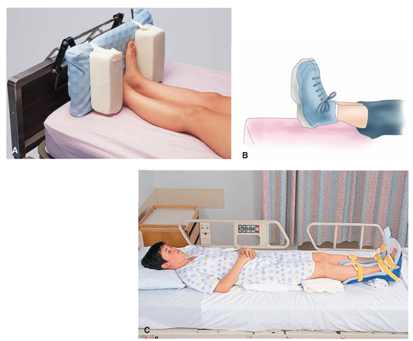 Wonderful Prevention Of Foot Drop. (A) A Padded Footboard Is Placed At The Design