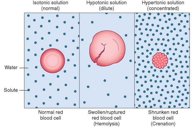 Osmosis and red blood cells. Water moving through a red blood cell membrane in solutions with three different concentrations of solute. All these actions have the goal of equalizing the solute concentration on both sides of the cell membrane. Left: Isotonic (normal) solution has the same concentration as the cell, and the water moves into and out of the cell at the same rate. Center: Hypotonic (diluted) solution causes the cell to swell and eventually hemolyze (burst) because of the large amount of water moving into the cell. Right: Hypertonic (concentrated) solution draws water out of the cell, causing it to shrink.