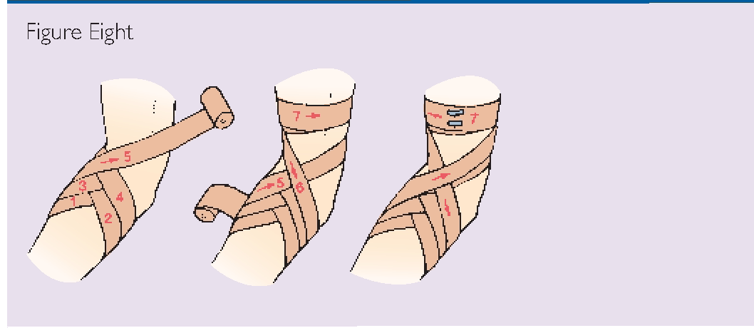 Image result for technique of crepe bandage for fingers