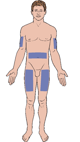 Subcutaneous injection sites. Less commonly, sites on the back are used.
