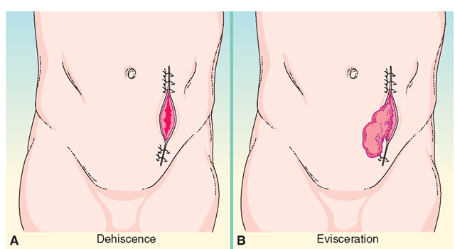 Serious postoperative complications. (A) Dehiscence is the splitting open or separation of the surgical incision. (B) Evisceration is dehiscence with the protrusion of viscera. Both are emergency situations.