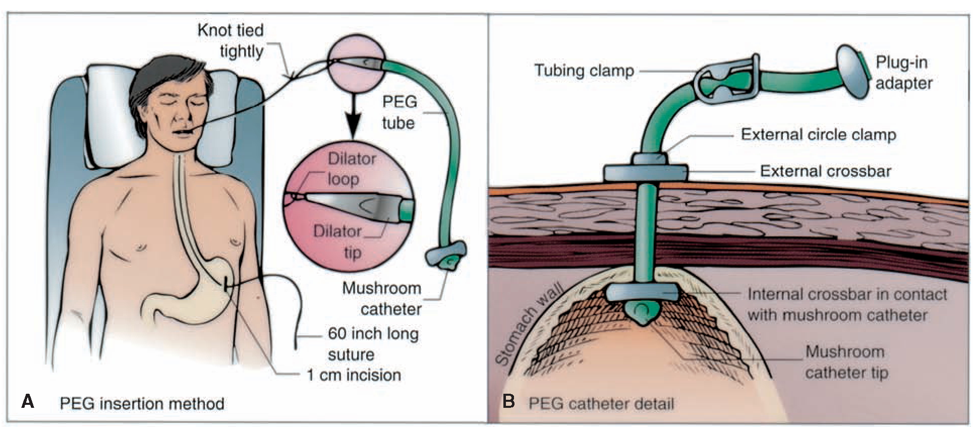 percutaneous endoscopic gastrostomy peg The ins & outs of gastrostomy tubes   feasibiity of the cut-and-push method for removing large-caliber soft percutaneous endoscopic gastrostomy devices.