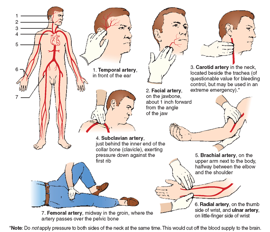 Pressure points for hemorrhage control.